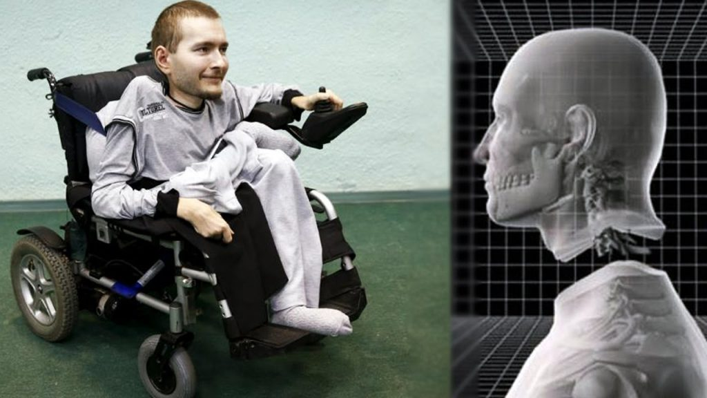 Russian Man, Valery Spiridonov; The Client for First Head Transplant